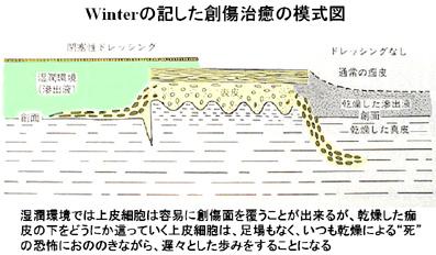 Winterの記した創傷治療の模式図